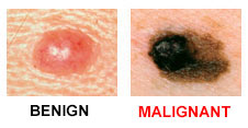 a - ABCDEs of Skin Cancer.jpg
