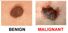 c - ABCDEs of Skin Cancer.jpg