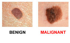 d  - ABCDEs of Skin Cancer.jpg