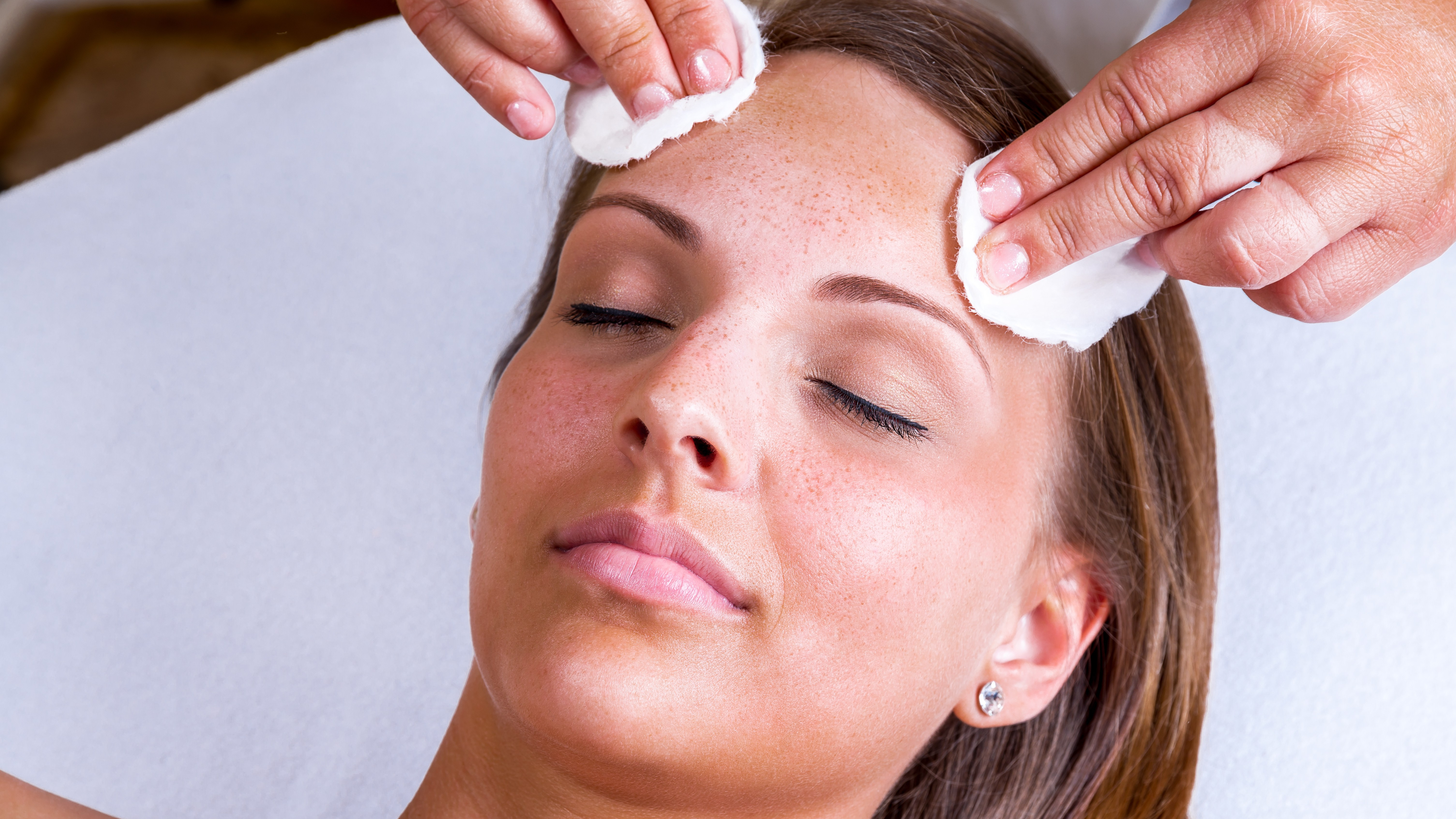 chemical peel facts