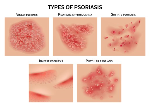 psoriasis treatment phoenix az