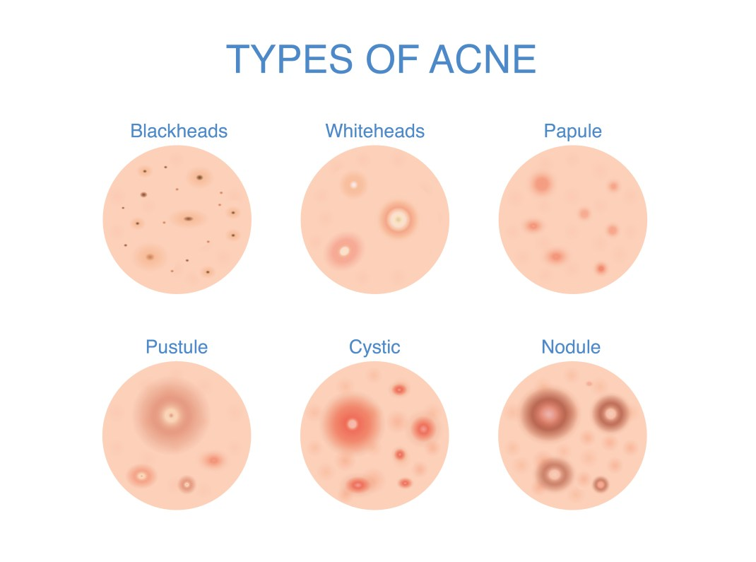 types of acne.jpg