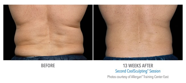 CoolSculpting before after male flanks.jpg