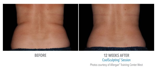 coolsculpting before after female flank.jpg