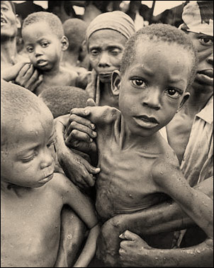 starving_children2