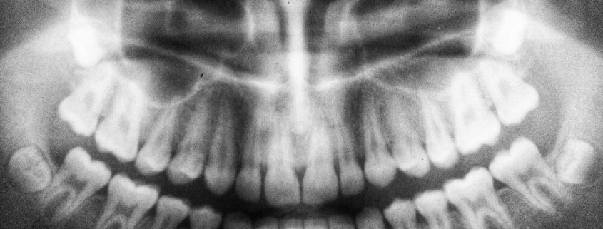 x-ray photo of teeth