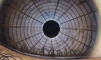 NIBUT Diagnostik trockenes Auge