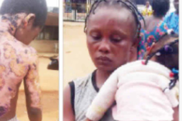 Nursing Mother sets 10-year-old boy on fire for misplaced trouser[Photo]