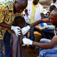 Sante : La Guinée se bat contre une importante épidémie de rougeole