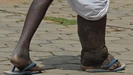 maladies tropicales négligées