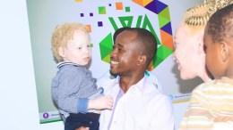 Wabouna s'engage pour la cause des albinos
