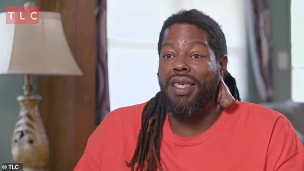 Etats-Unis homme opérer testicule porte oreille 21 ans