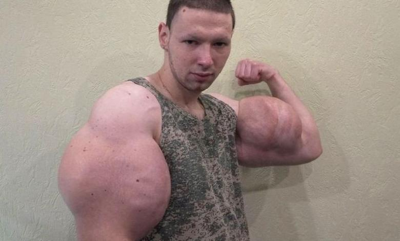Popeye bodybuilder wants to get rid of oil-filled mega biceps