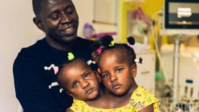 Heartbreaking dilemma for Father: separating conjoined twins girl or not?