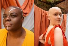 Women pose to break the taboo around the alopecia hair condition