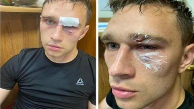 """""""Unfair red card"""": Captain thunders blow on the face of referee"""