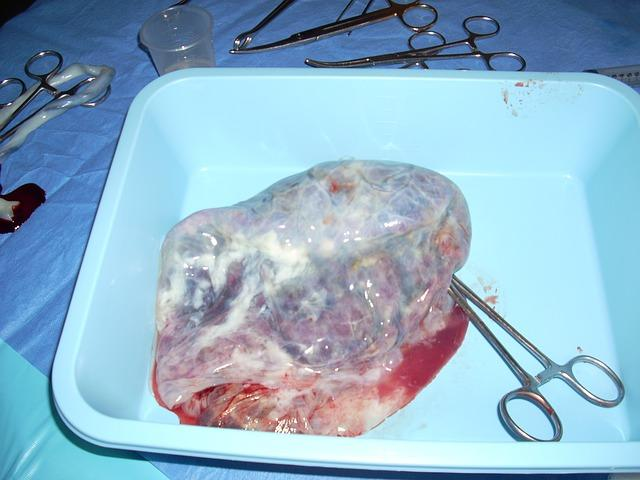 Consuming your placenta