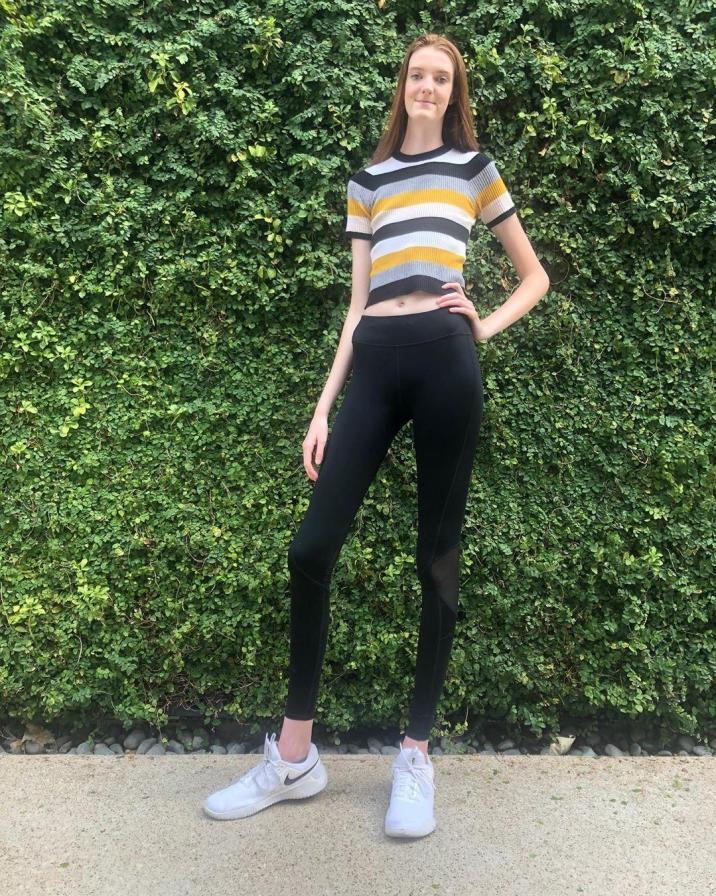 "Maci (17) has the longest female legs in the world: ""I used to be bullied"""