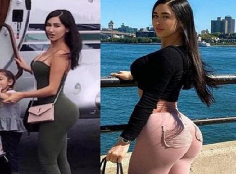 'Mexican Kim Kardashian' dies after famous buttock surgery