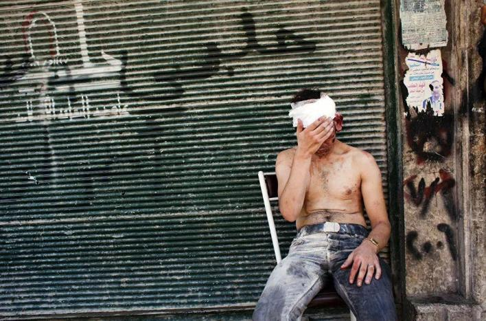 Man injured in a bombardment in front of a closed shop in Aleppo, September 4, 2012.