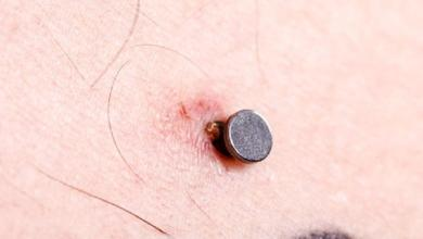 Some potential problems associated with body piercing
