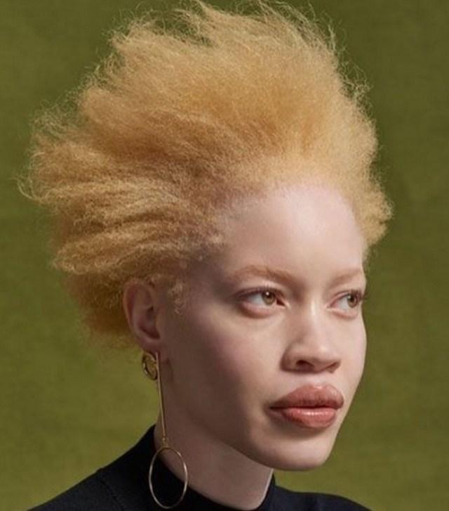 Albinos : Diandra Forest