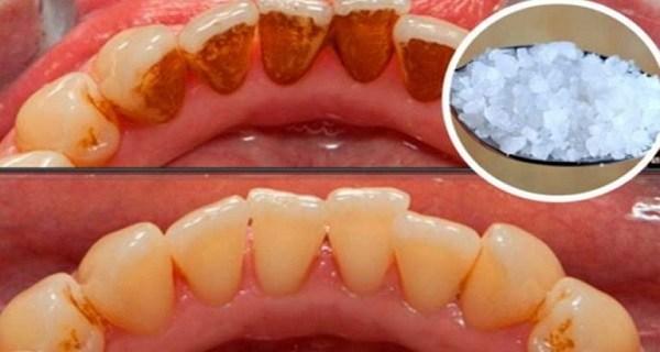Comment blanchir les dents jaunes et éliminer les plaques tartre ?