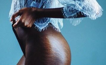 femme africaine vergétures