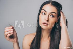 Haarverlust