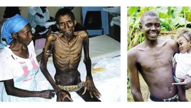 Photo of Haitian Patient, before and after Receiving Treatment for HIV-10 Facts About HIV/AIDS