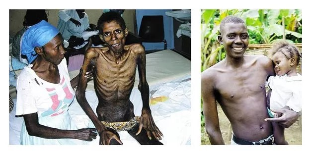 Haitian Patient, before and after Receiving Treatment for HIV-10 Facts About HIV/AIDS