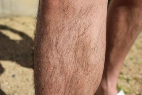 体毛が濃くなるAGA治療薬はミノキシジルタブレットのみ