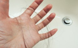 FAGAとは:女性男性型脱毛症とは?原因や予防法は?治療はどこで受けられる?