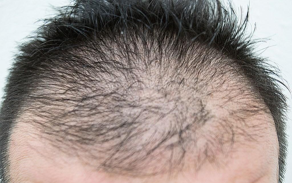 AGA(男性型脱毛症)とは?他の脱毛症(ハゲ)との違いは?