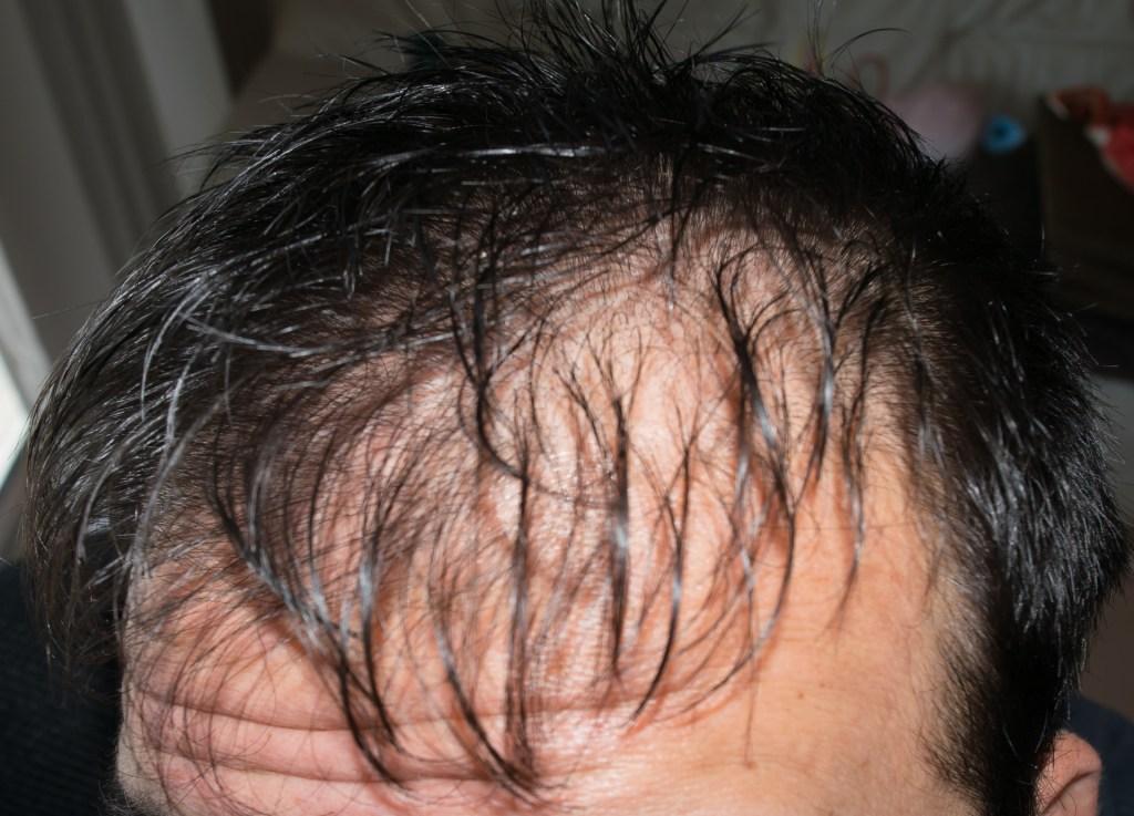 プロペシアによる初期脱毛の発症確率は?