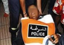 خطير: عصابة إجرامية تكسر ذراع شرطي والأطباء يرجحون إصابته بعاهة مستديمة