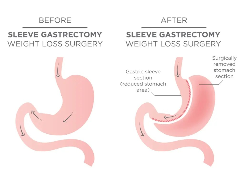Sleeve Gastrectomy Before & After