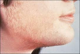 علاج ارتفاع هرمون الذكورة حلول لخلل هرمون الذكوره عجيب وغريب