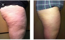 Fat Freezing results on tights