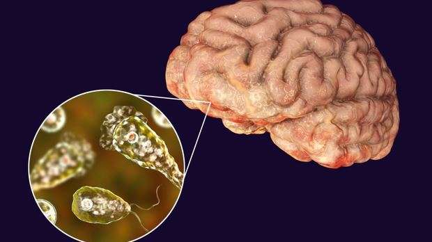 Confirman nuevo caso de la 'ameba come cerebros' en Florida