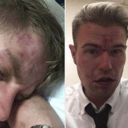 酷新聞:倫敦火車傳恐同攻擊 男同志情侶鼻青臉腫