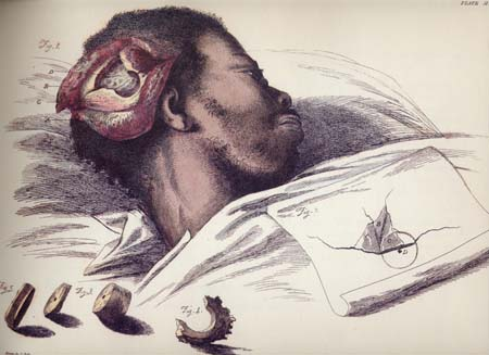 a sketch of a patient with exposed skull and brain
