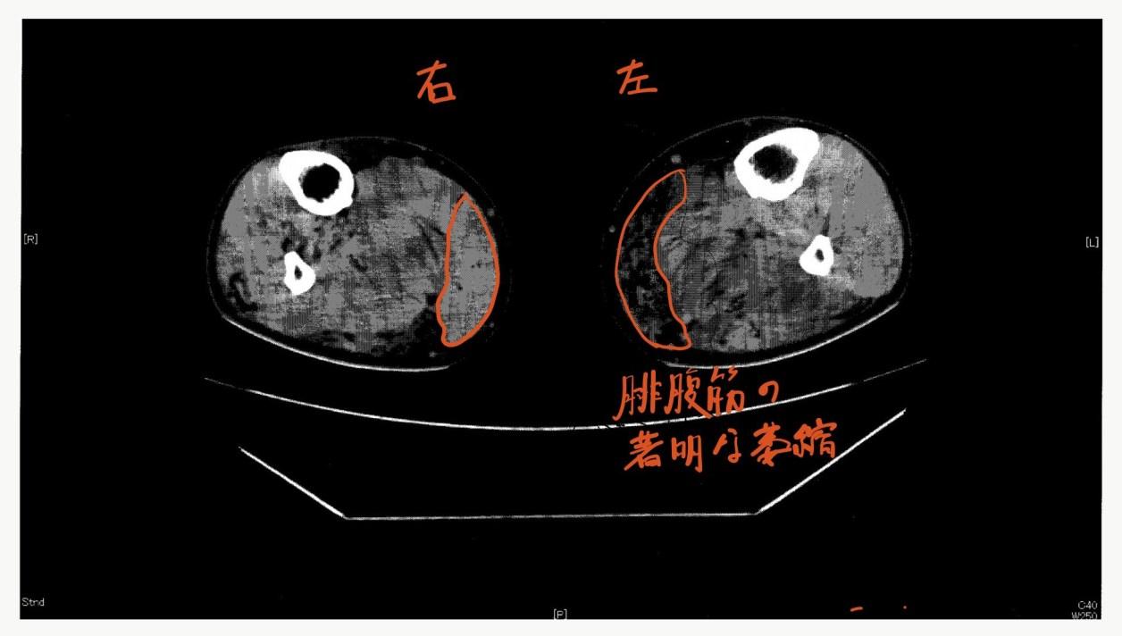 MRI下腿