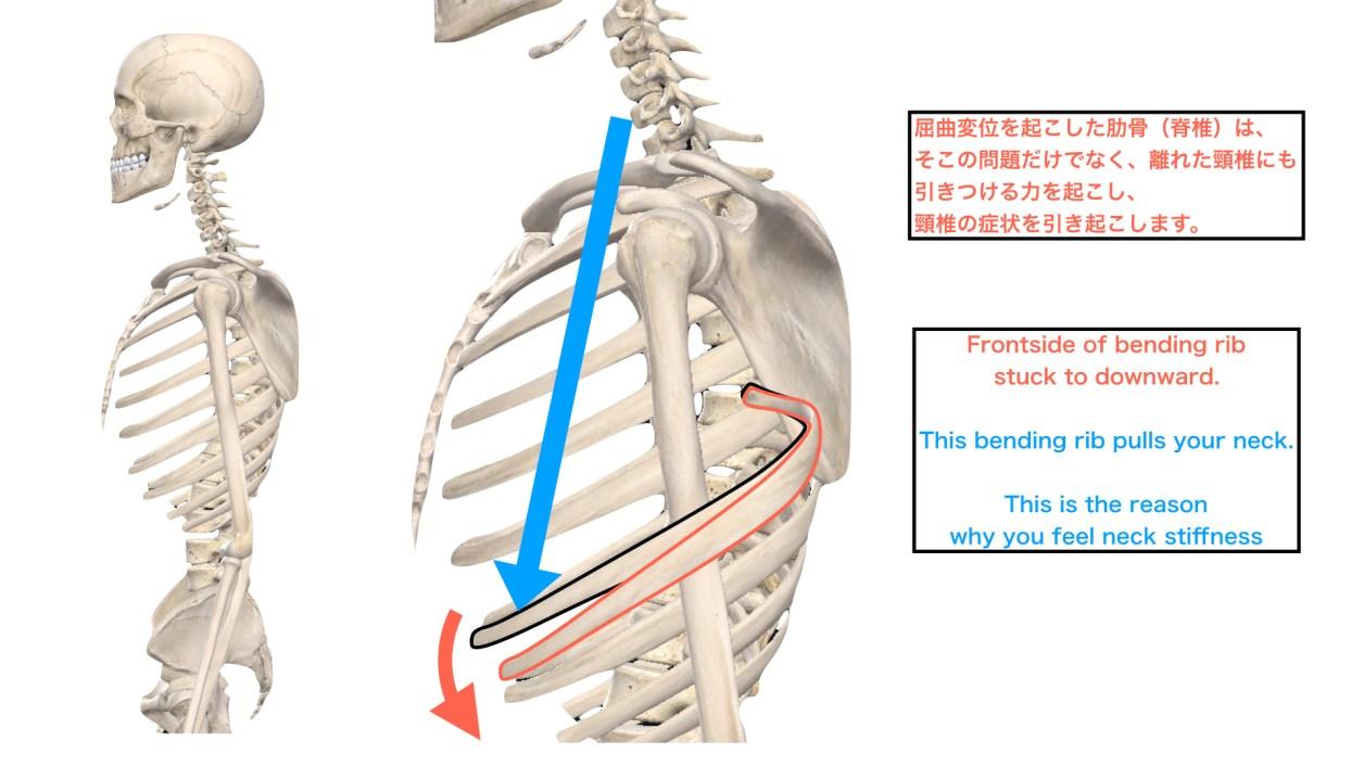 肋骨の屈曲変位による頸椎症