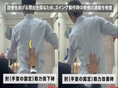 テニス肘 脊椎の触診