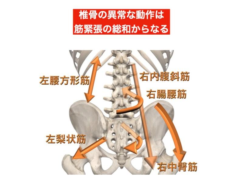 腰椎の筋緊張によるストレス図