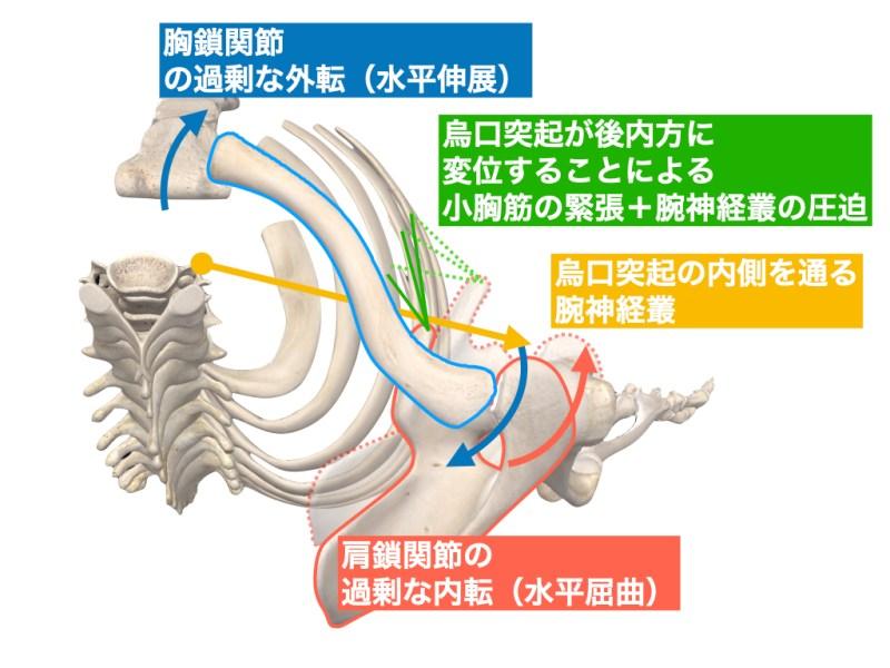 症例 胸を張ることで起こる胸郭出口症候群
