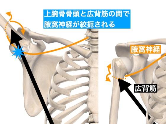 広背筋と上腕骨頭による腋窩神経の障害