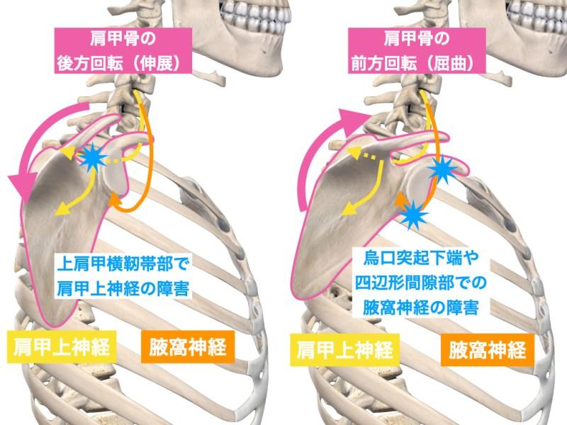 肩甲上神経・腋窩神経の障害と肩甲骨の変位