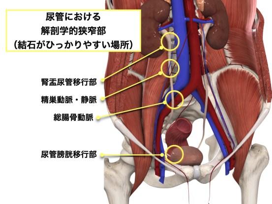 尿管における解剖学的狭窄部